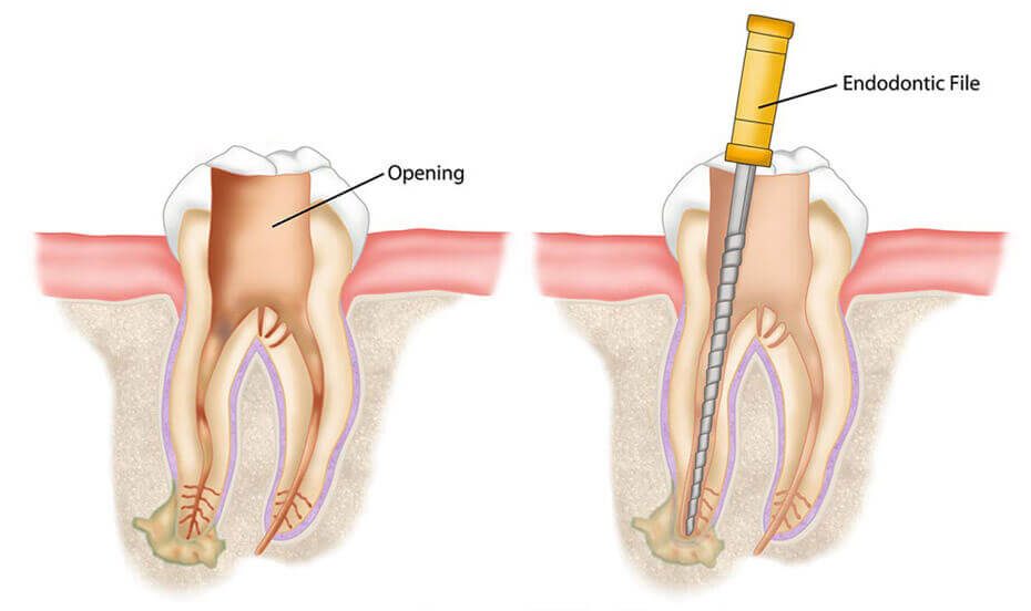 Root Canal Therapy - Cura Dental Studios